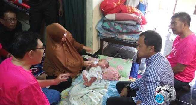 Waqi, Bayi Pengidap Penyakit Epidermolisis Bulosa Dijenguk Wali Kota